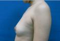 上海瑞芙臣应天祥自体脂肪隆胸案例 38800元瘦身又隆胸一举两得