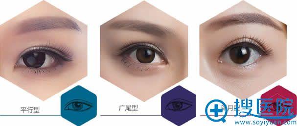 双眼皮类型的划分_北京一美