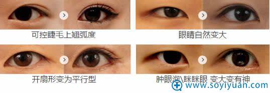 一美翘睫双眼皮手术效果展示