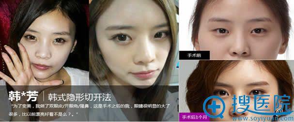 北京一美韩式隐形切开双眼皮案例