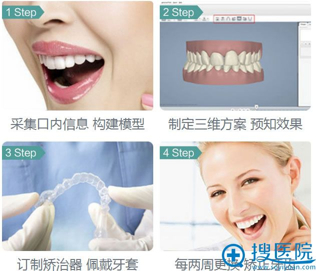 汕头名流牙齿隐形矫正过程
