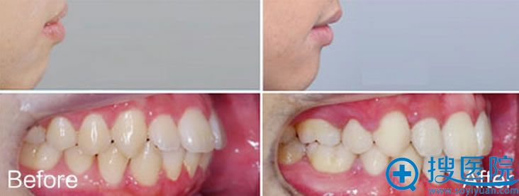 牙齿矫正不止让牙齿整齐,也令面容更美观
