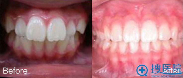 汕头名流牙齿钢丝矫正前后对比图