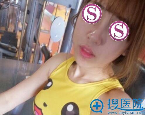 在北京雅靓做鼻翼缩小之前照片