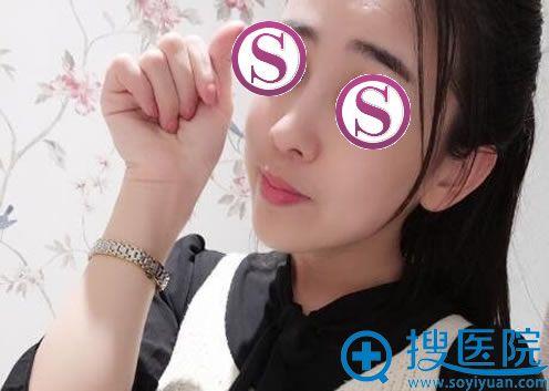 在北京雅靓做鼻翼缩小四个月照片