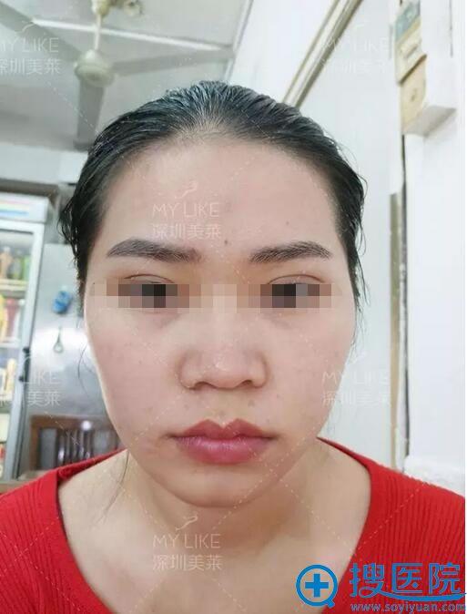 术前塌鼻子,双颌前突面部凹陷,面部不够饱满