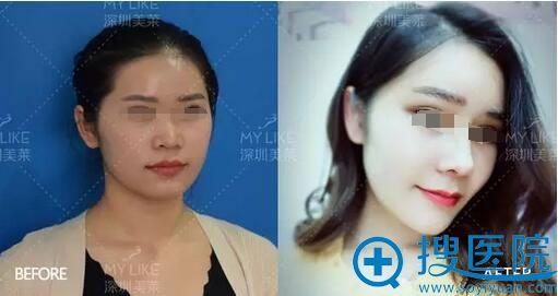 手术前后对比照