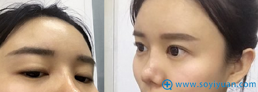 面部脂肪填充术后1个月恢复特写