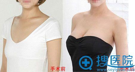 西安西美自体脂肪隆胸案例