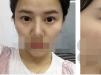 【恢复日记】深圳流花医院整形美容科周敏自体脂肪填充面部案例