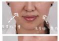 【真人秀】天津美莱整形医院神奇面部线雕 让我自带上镜小V脸