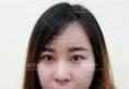 真实案例揭秘上海喜美隆鼻怎么样 大鼻头改善后变身混血美女