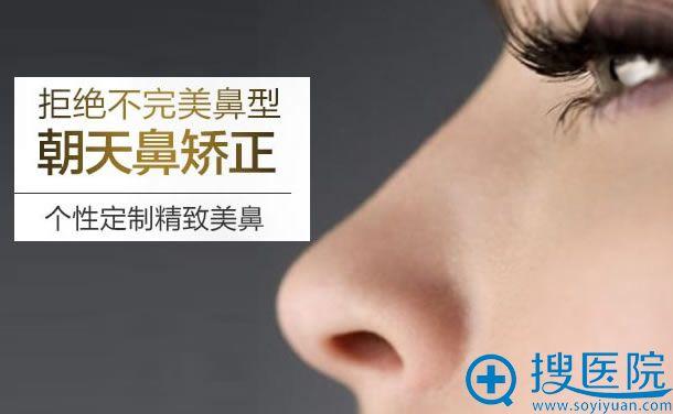 北京雅韵整形朝天鼻矫正手术