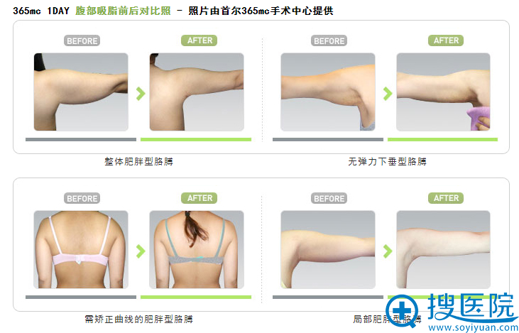 韩国首尔365mc医院胳膊吸脂前后对比案例