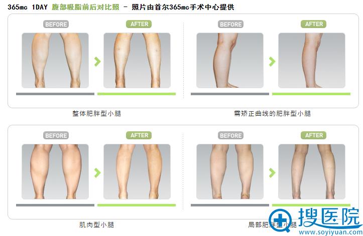 韩国首尔365mc医院小腿吸脂前后对比案例
