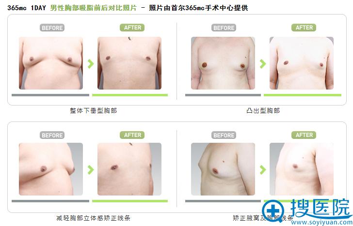 韩国首尔365mc医院男性胸部吸脂前后对比案例