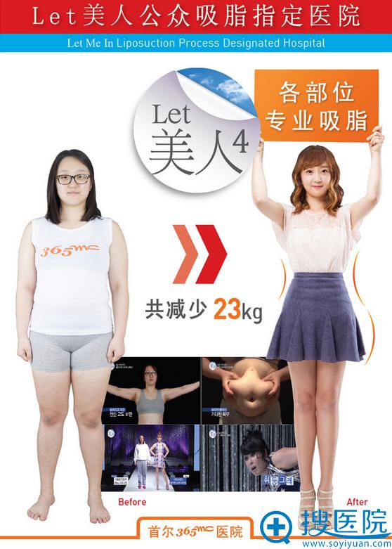 韩国首尔365mc医院LET美人4吸脂真人案例