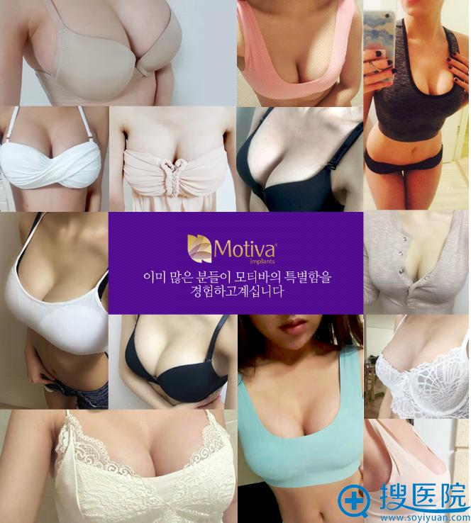 韩国麦恩整形外科医院隆胸案例