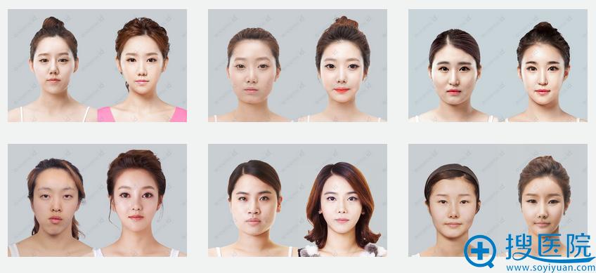 韩国ID整形医院V-line下颌角手术案例
