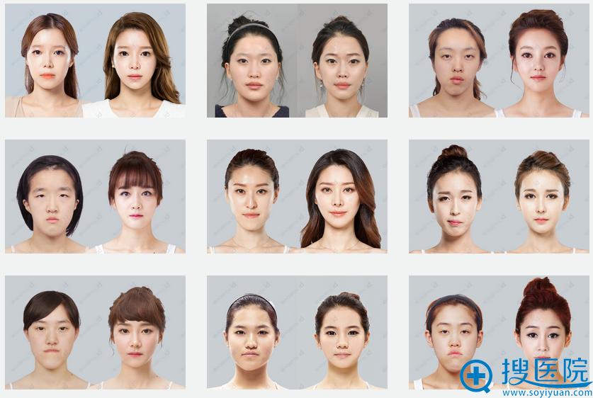 韩国ID整形医院双鄂手术前后对比案例