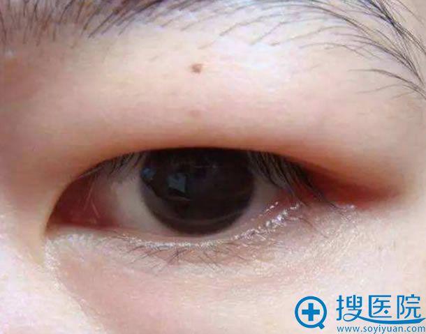 上眼皮脂肪多可以做双眼皮吗