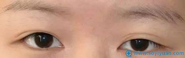 双眼皮效果消失照片