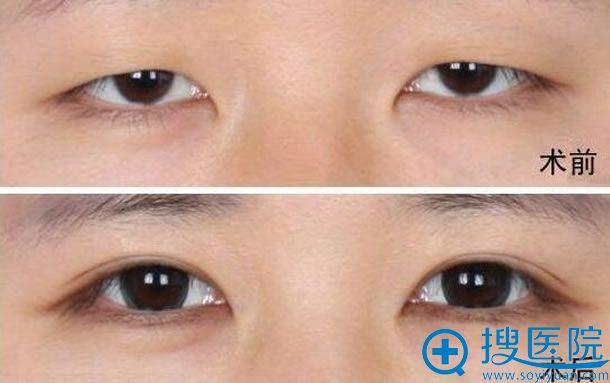 切开法双眼皮前后效果对比照片