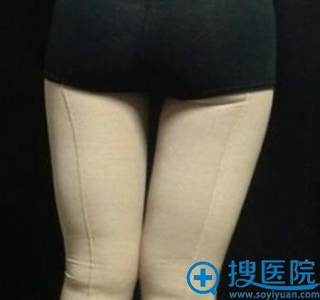 做完大腿吸脂手术2周照片