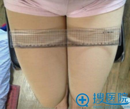 北京冯立哲整形医院吸脂手术效果