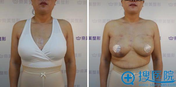 北京京美隆胸失败修复手术天