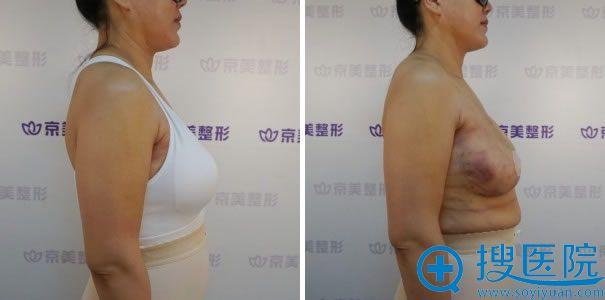 自体脂肪隆胸手术侧面照片