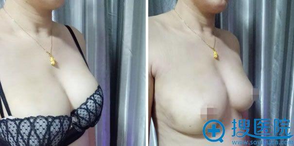 在北京京美做自体脂肪隆胸第3天效果