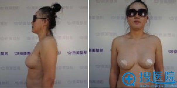 做假体隆胸修复手术前的胸部照片