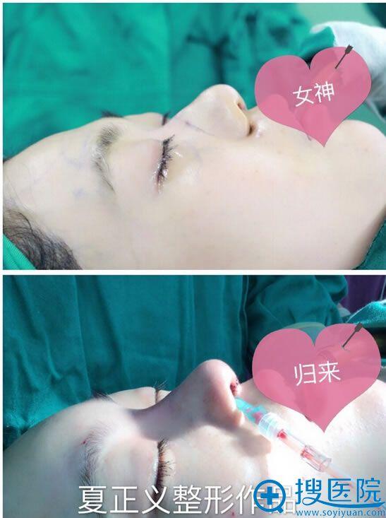 北京米扬丽格夏正义做鼻子效果