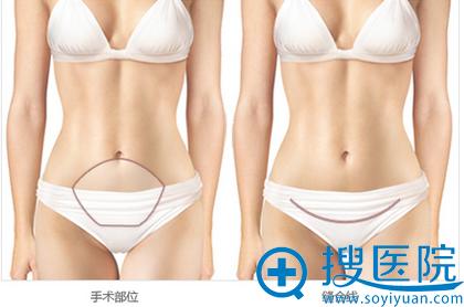 腹部吸脂手术部位