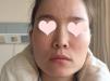 上海九院磨骨多少钱 韦敏颧骨内推+下颌角改脸型8.8万元附案例