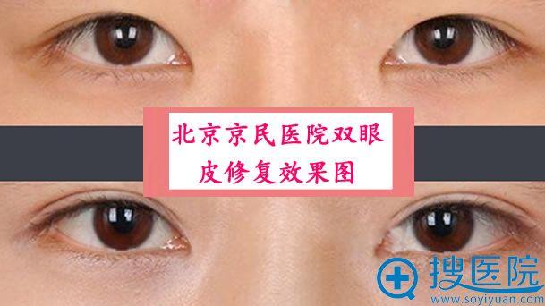 北京京民医院双眼皮修复效果图