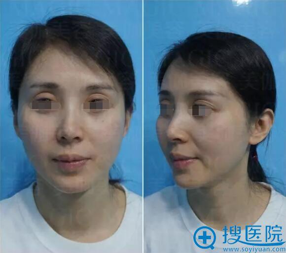 面部脂肪填充术前照片