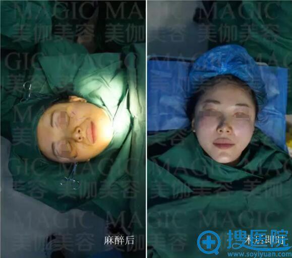 手术麻醉后和术后即刻效果