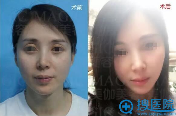 自体脂肪填充面部手术前后对比照片