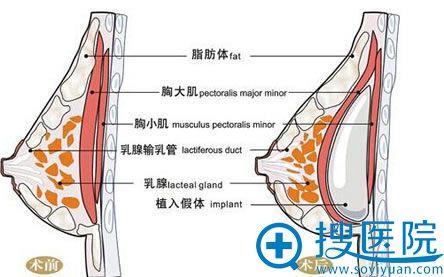 假体隆胸模拟前后对比效果