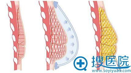 注射丰胸手术原理