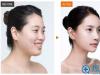 韩国bio整形外科医院朴东满院长:整容不可怕,谁丑谁尴尬
