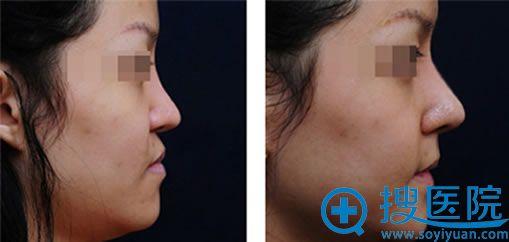 自体软骨改善鼻翼缺陷案例图