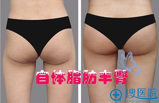自体脂肪丰臀案例效果图