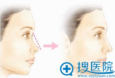 时光玻尿酸隆鼻
