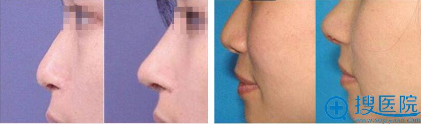 鼻综合案例对比图