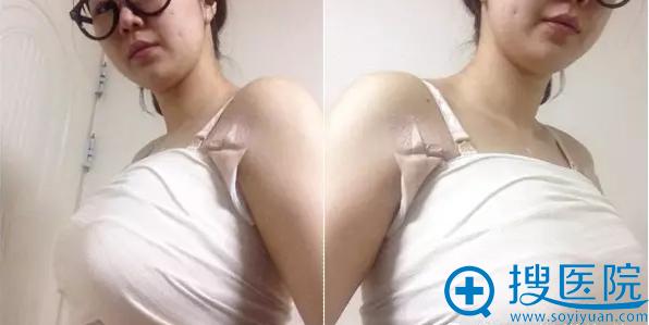 隆胸恢复期第3天照片