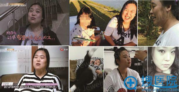 韩国珠儿丽做全身吸脂手术前照片