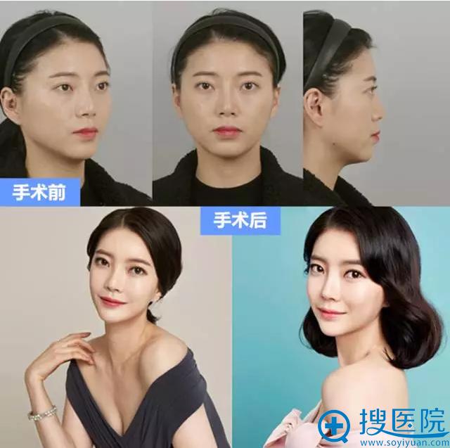韩国id整形外科医院双鄂+vline下颌角手术案例